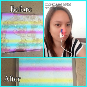 Before and After Blood Viscosity using the Intranasal Light Theraphy