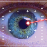 acute-glaucoma-attack, acute-glaucoma, how-to-prepare-for-acute-glaucoma-attack
