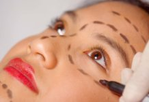 About Blepharoplasty