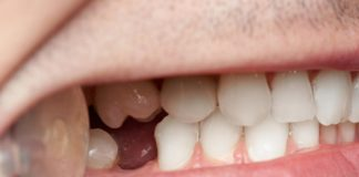 What to Do in the Event of Losing Your Teeth